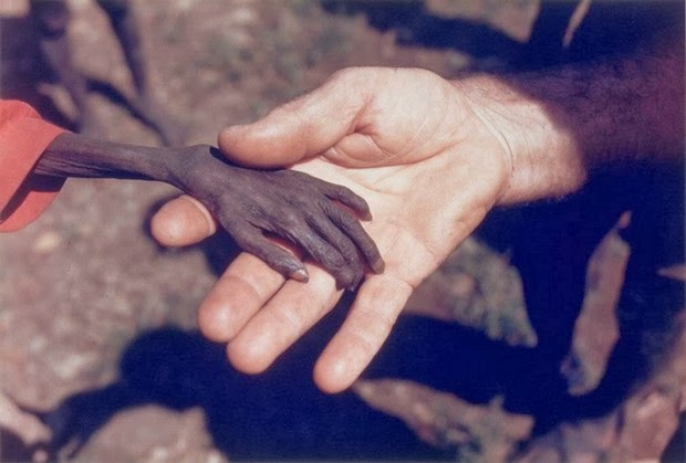 Starving boy and missionary