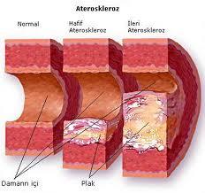 cara mengobati kolesterol tinggi secara alami
