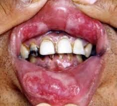 penyakit sipilis di mulut