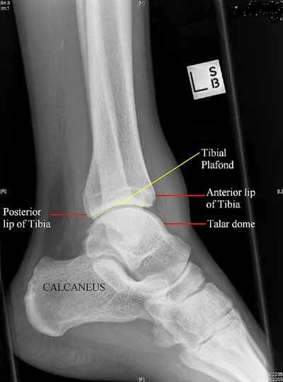 Ankle Xray Lateral View Anatomy Radiology Anatomy Images