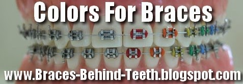 Colors For Braces