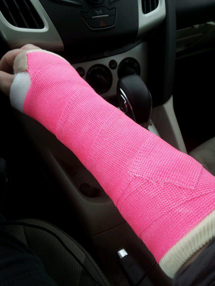 how i broke my wrist Wrist fractures are common injuries affecting people of all ages these injuries often occur from a fall on an outstretched arm or sports-related accident.