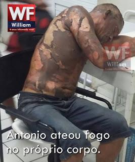 AINDA NÃO SE VIU TUDO: Lavrador embriagado ateia fogo no próprio corpo