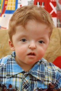 The gallery for --> Mild Apert Syndrome