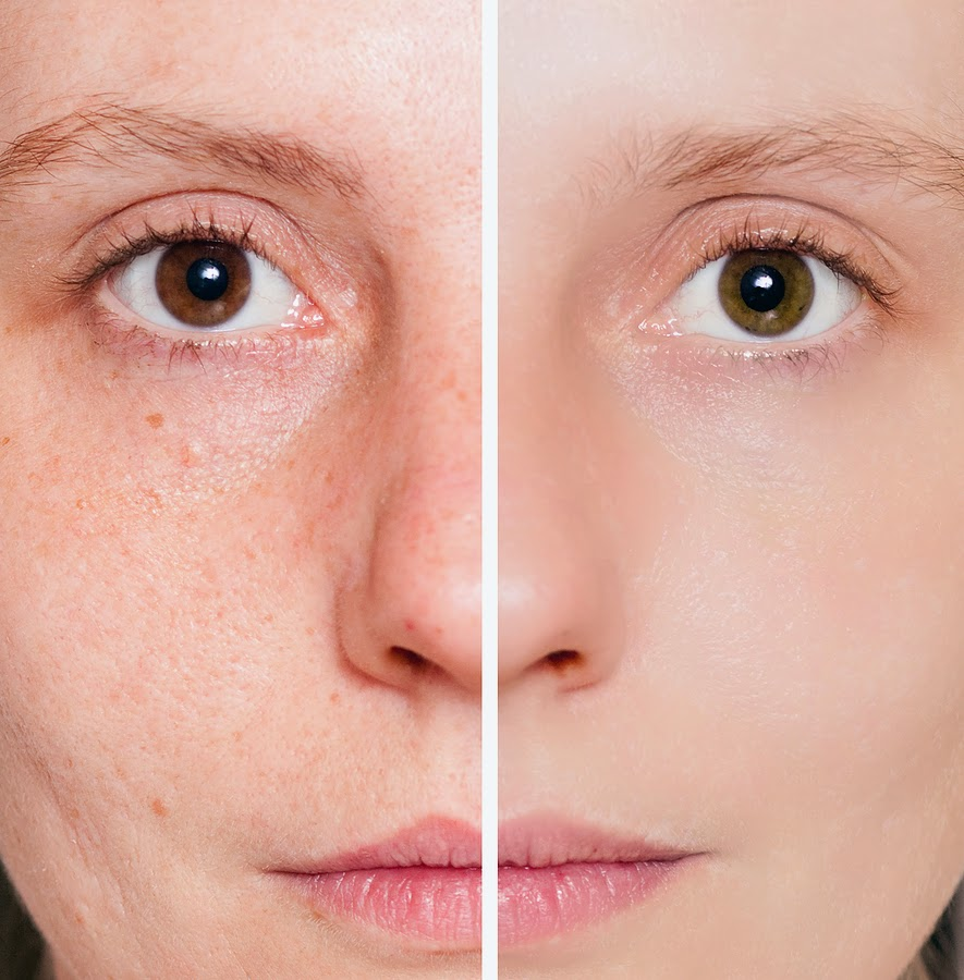 Sensitive Skin Problems Solved