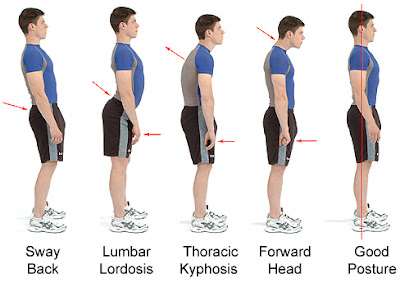 Tipos de postura