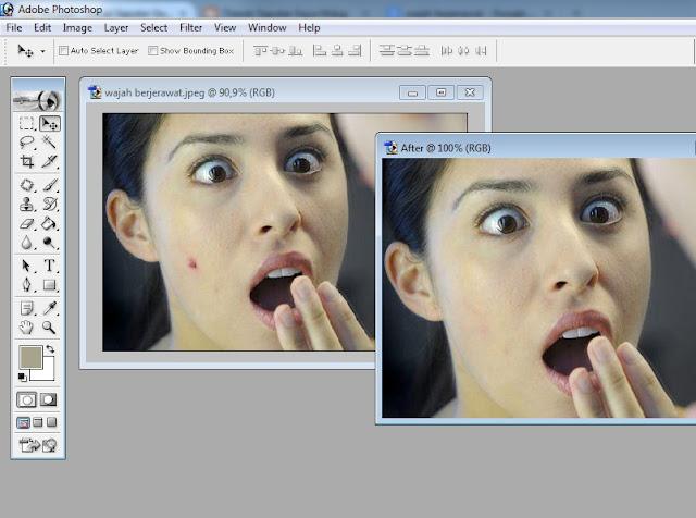 Tips Menghapus Jerawat dengan Photoshop Secara Cepat