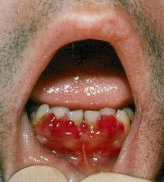 glutenintolerans symptom utslag