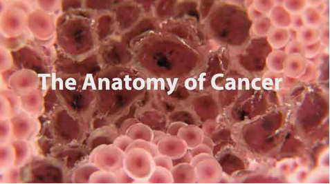 The Anatomy of Cancer