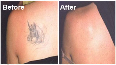 tattoo removal charlotte nc