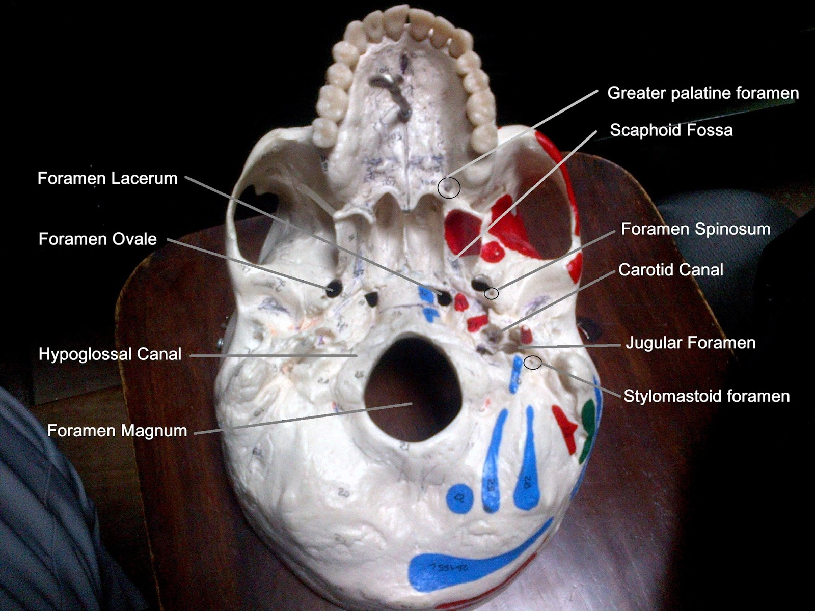 Anatomy Made Easy Inferior View Of The Skull