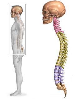 El corrector de la presencia ortopédico con los bordes de la dureza reforzado