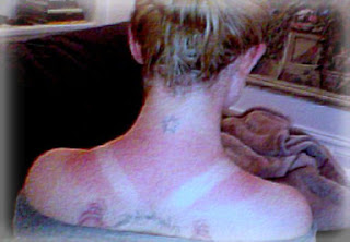 Kelly Osbourne sunburn