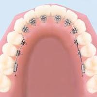 Aparat dentar invizibil (lingual)