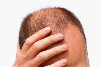 Que usar para la caida del cabello