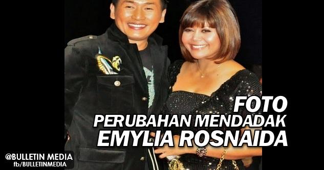 SUBHANALLAH !! Inilah Foto Perubahan Mendadak Emylia Rosnaida, Isteri AC Mizal