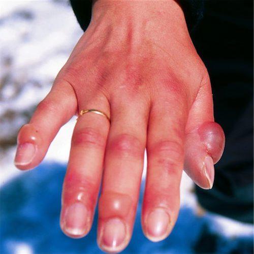 Фото как выглядит авитаминоз на руках