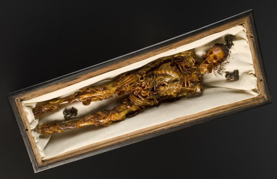 Morbid Anatomy: Wax Model of a Decomposing Body in a Walnut Coffin ...