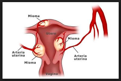 Pengertian Penyakit Miom, Jenis dan Gejalanya