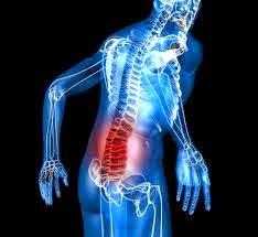 (Low Back Pain) Rasa Nyeri yang Terjadi Di Daerah Pinggang