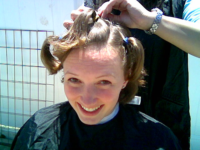 Before And After Brain Surgery | HAIRSTYLE GALLERY