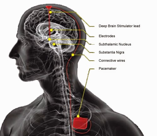 http://www.neurosurgerynow.com/parkinsons-syndrome.php