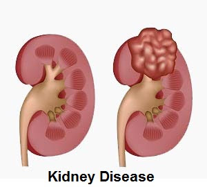 kidney disease: causes, symptoms, diagnosis and treatment