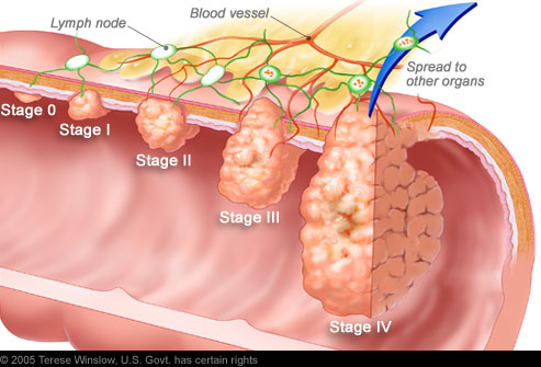 Early Stages of Lip Cancer http://healthtanan.blogspot.com/2011/07/colorectal-cancer-overview.html