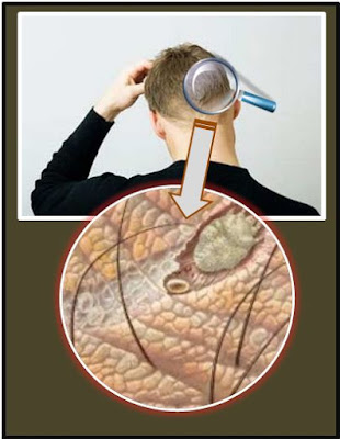 Gb. Cara Mengatasi Kulit Kepala Kering, Berjamur, Gatal