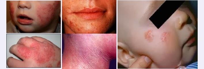 Namun, diagnosis mungkin sulit karena psoriasis dapat terlihat seperti penyakit kulit lainnya 1
