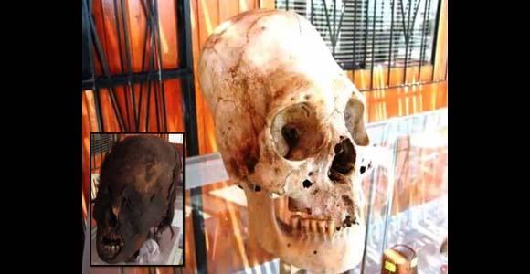 Cráneos de humanos híbridos con forma cónica de Paracas, Perú