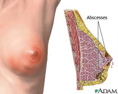Berbagai Penyebab Terjadinya Penyakit Mastitis Pada Ibu Menyusui Bunayya Aqiqah Catering Package - 085751981081