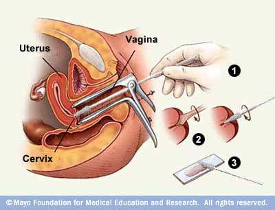 Checking of vagina