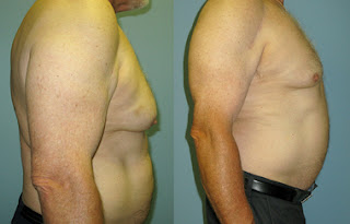 Bernie Parent and gynecomastia-Sacramento,CA