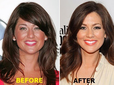 Jillian Harris nose job Plastic Surgery