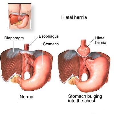 Hiatus Hernia Info: Hiatus Hernia Outcomes on your body