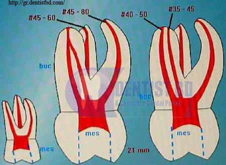 HU TU TU: maxillary first molar