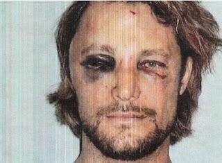Gabriel Aubry com rosto desfigurado após briga. Foto: AP