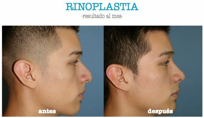 rinoplastia_madrid