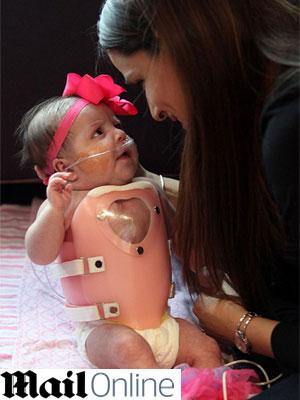 Operação de peito de respostas
