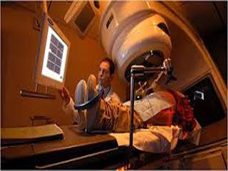 Metode pengobatan dengan cara terapi radiasi dapat digunakan untuk mengobati  BLOG PAGE ONE GOOGLE | TERAPI RADIASI KANKER PROSTAT