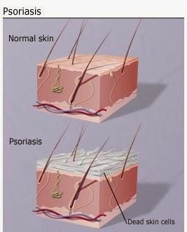 Псориаз - тревожный сигнал имунной