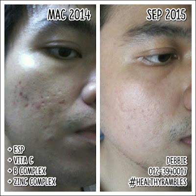 Gambar sebelum dan selepas - Pengambilan vitamin yang konsisten boleh mempercepatkan lagi proses pemulihan kulit wajah