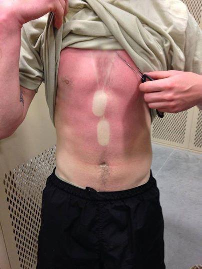 how to help a really bad sunburn