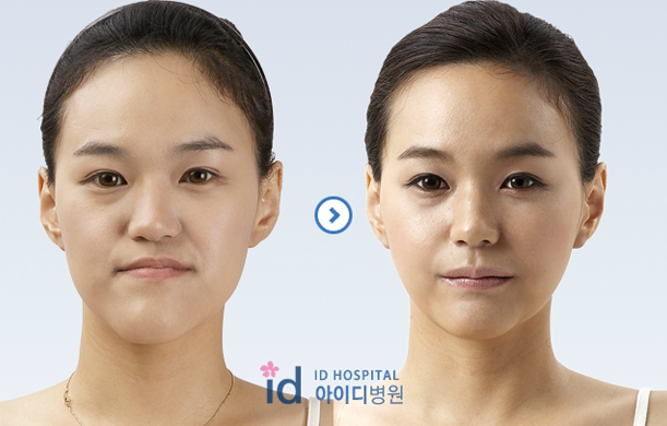 ID Hospital Korea Plastic Surgery: Two-jaw surgery review ...