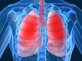 Gejala dan Pencegahan Penyakit Paru-Paru Basah