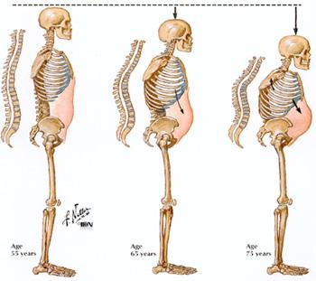 http://3.bp.blogspot.com/-ewEG6aXAQhI/Tt7K5McOkUI/AAAAAAAABng/aAK5LDT1b34/s1600/osteoporosis-aging.jpg