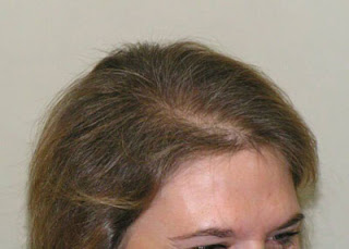 http://www.smpdebate.com/wp-content/uploads/2014/02/hair-loss-in-women-causes.jpg