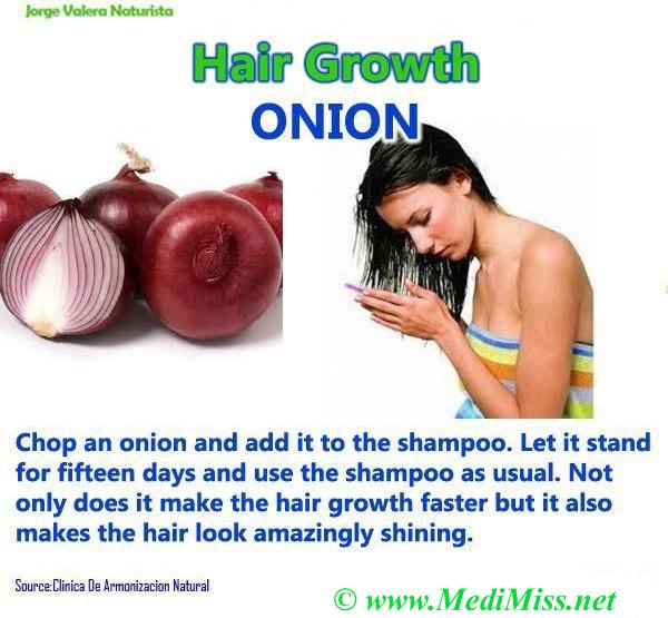 Hair Growth ONION