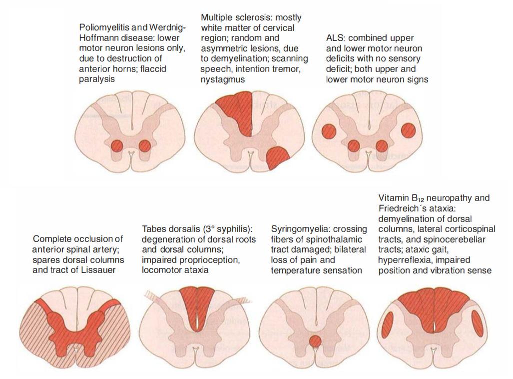 transverse myelitis treatment steroids